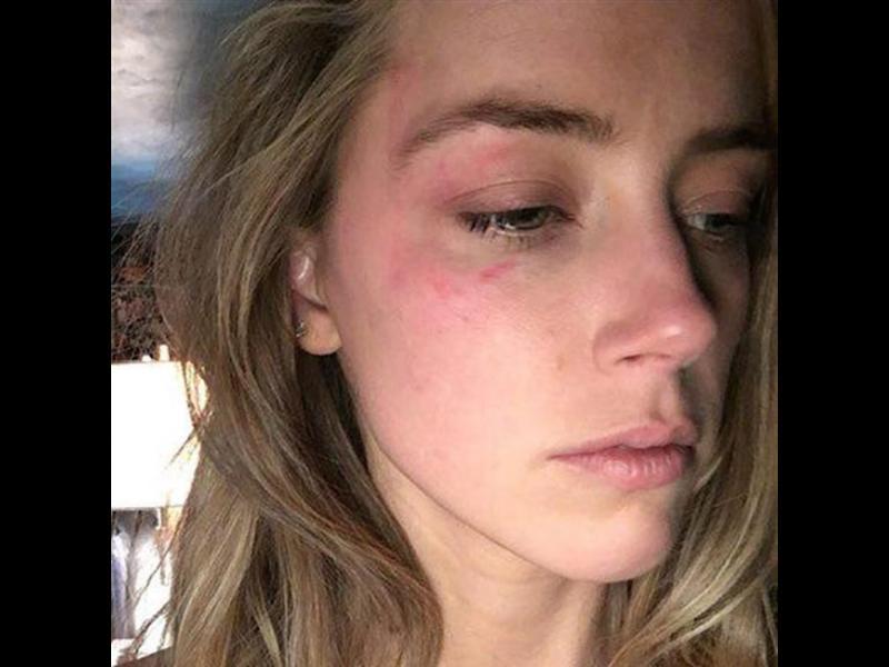 Амбър Хърт призна: иска развод заради домашно насилие - картинка 1