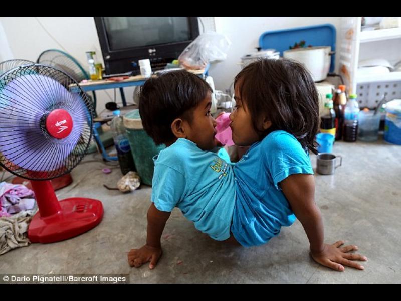 /СНИМКИ/ Сиамските близнаци, споделящи много повече от другите - картинка 1