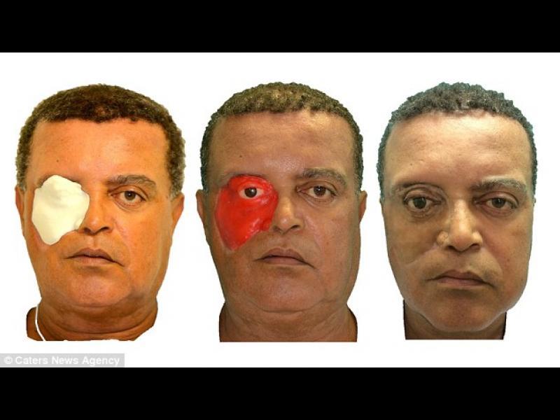 Пациент от Бразилия е първият, получил лице от 3D-принтер