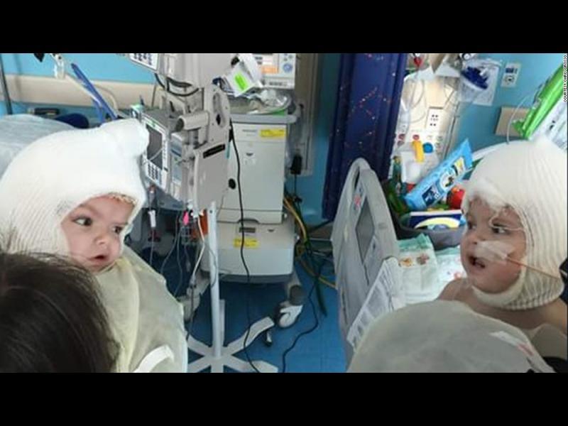Разделени сиамски близнаци се видяха един друг за първи път