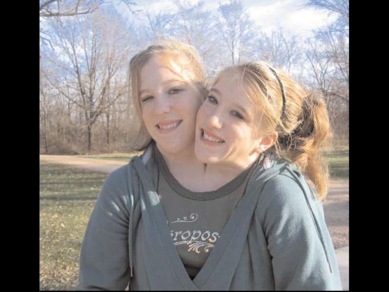 Историята на сиамските близначки с две глави, но едно тяло