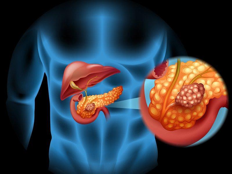Учените намериха начин да победят рака на панкреаса - картинка 1