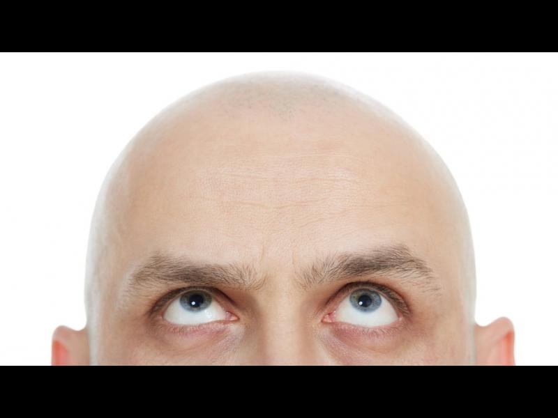 Препарат срещу остеопороза връща космите по главата